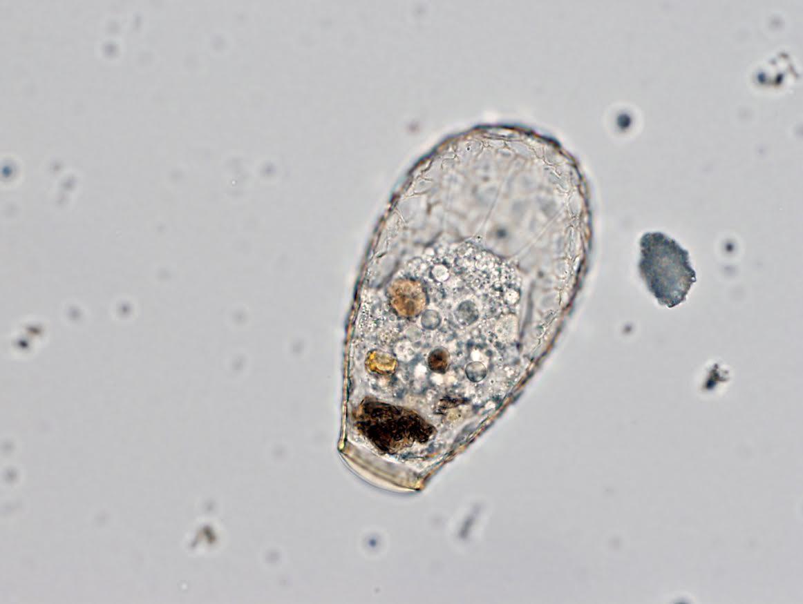 Nebela. Este protista del género Nebela es un depredador feroz que se alimenta de otros protistas, hongos y hasta pequeños animales. Fotografía: Clément Duckert, Universidad de Neuchàtel